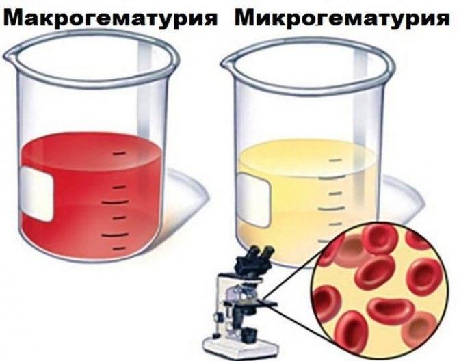 Сгустки крови в моче: причины и методы лечения