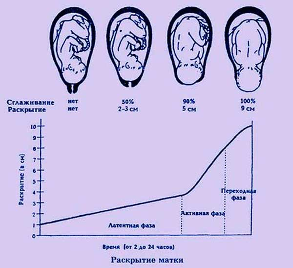 Раскрытие шейки матки на 4 см когда рожать - мама