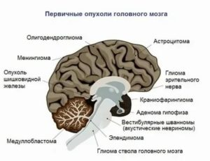 Глиома головного мозга: виды, симптомы, диагностика, лечение