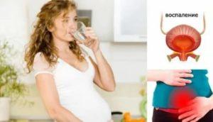 Фарингит при беременности