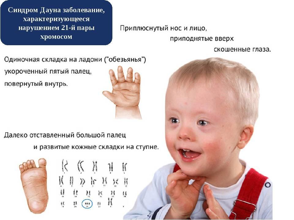 Как определить синдром дауна у новорожденных
