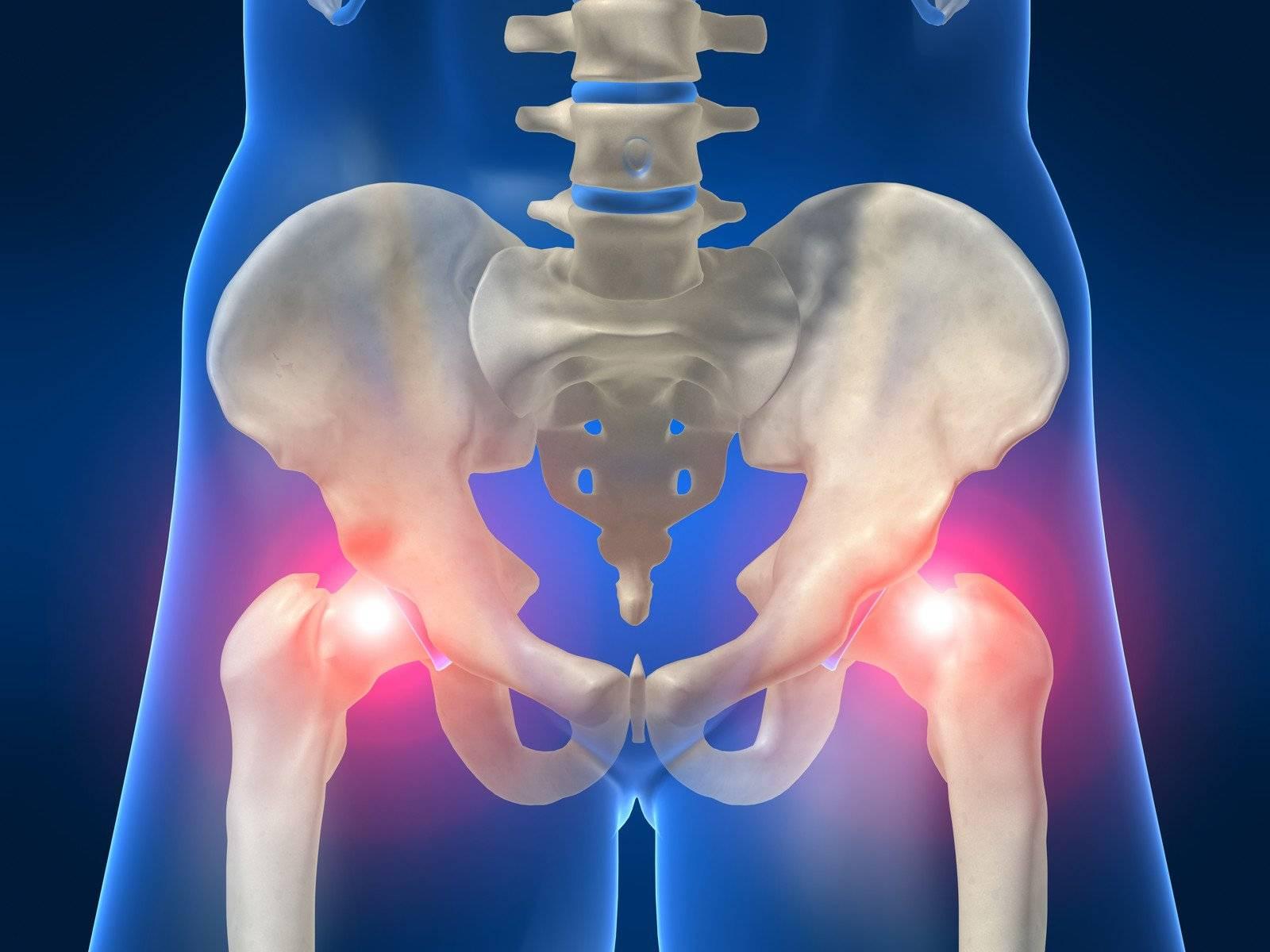 Инфекционно аллергический артрит тазобедренного сустава у детей - как передается, классификация, проявления, симптомы и лечение