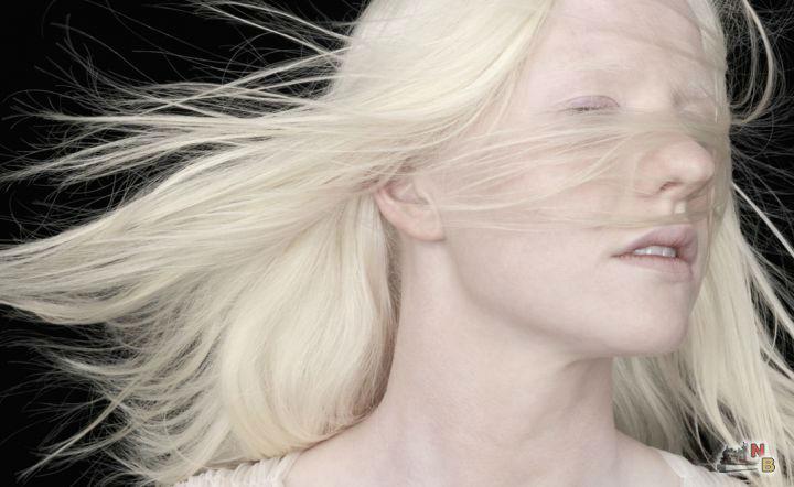 Альбинос: кто такой, 3 типа альбинизма, способы лечения и советы