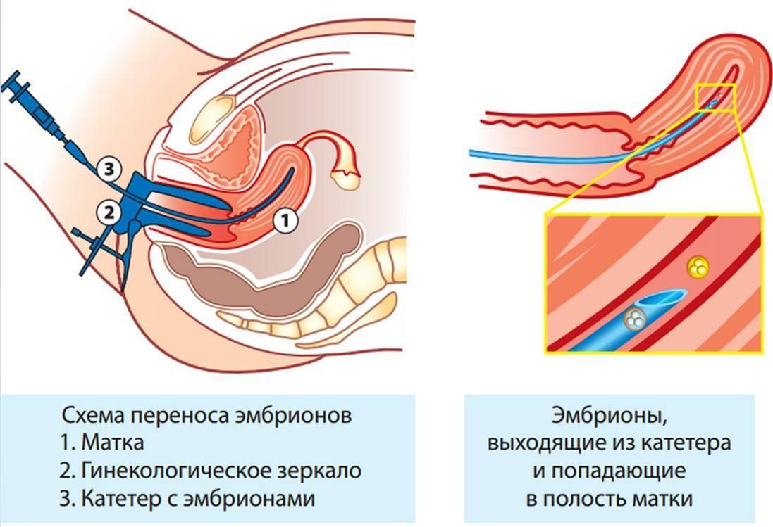 Развитие эмбриона по дням после эко: стадии развития трехдневок и пятидневок после переноса и подсадки, рост и другие нормы в таблице