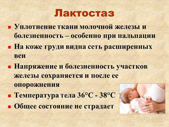 Лактостаз у кормящей матери – причины, симптомы и лечение