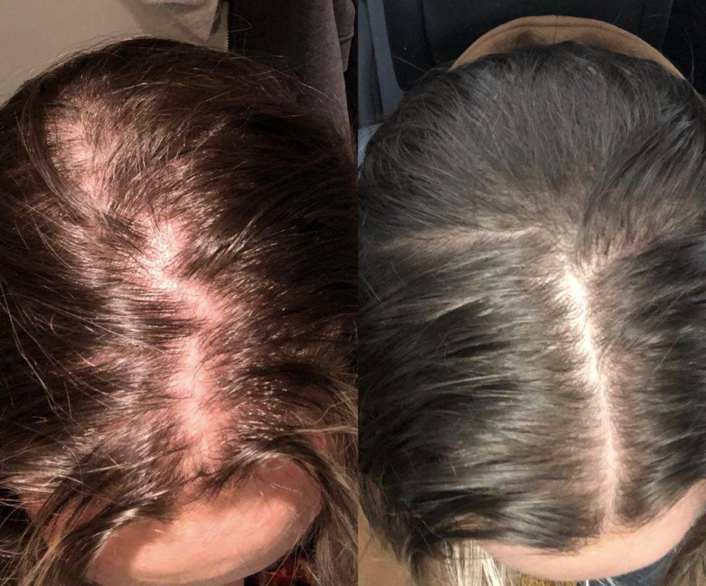 Выпадают волосы при грудном вскармливании | уроки для мам