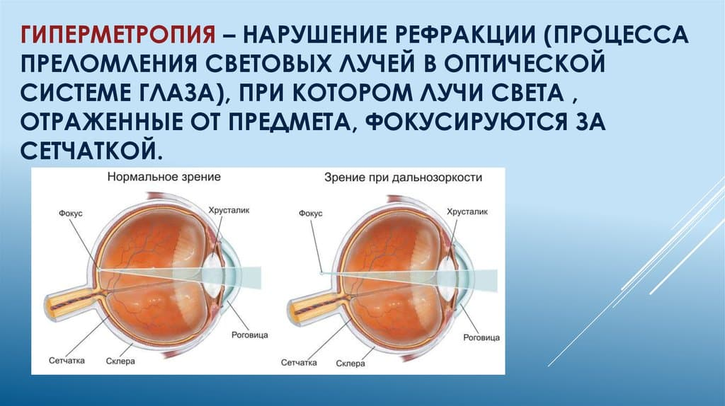 Гиперметропия слабой, средней и высокой степени, классификация заболевания