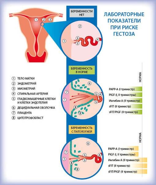 Поздняя беременность - беременность и роды после 40 лет