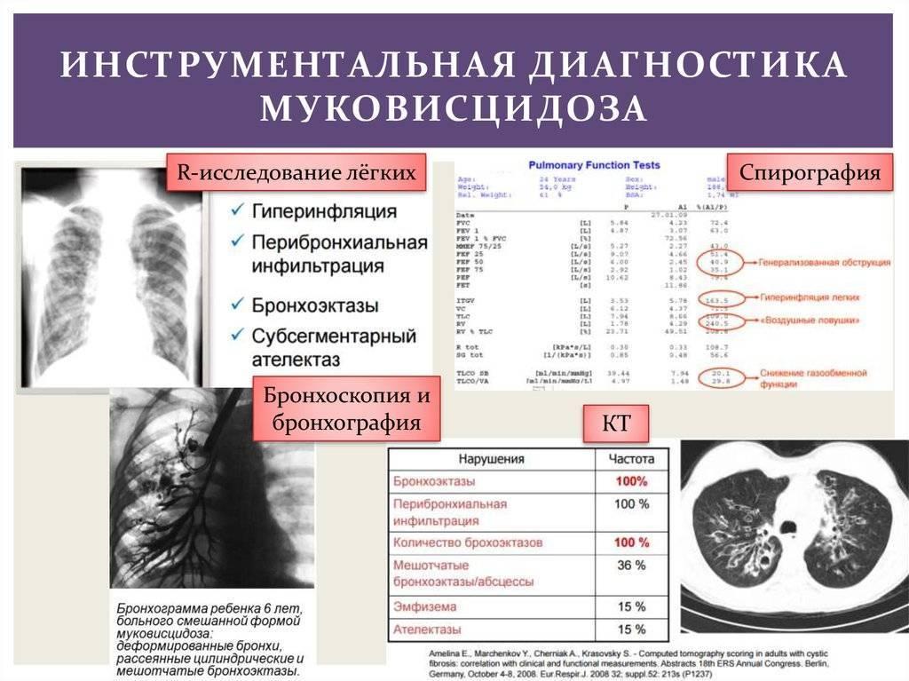 Муковисцидоз у детей: симптомы, лечение и продолжительность жизни больного