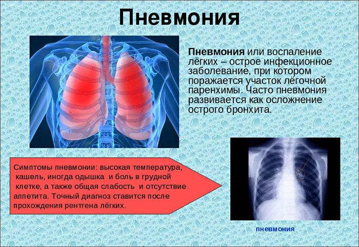 Хроническая пневмония у детей: затяжное лечение, симптомы и профилактика, а также как ее правильно называть