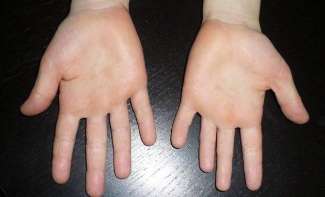 Брахидактилия: причины, симптомы, диагностика, лечение, профилактика