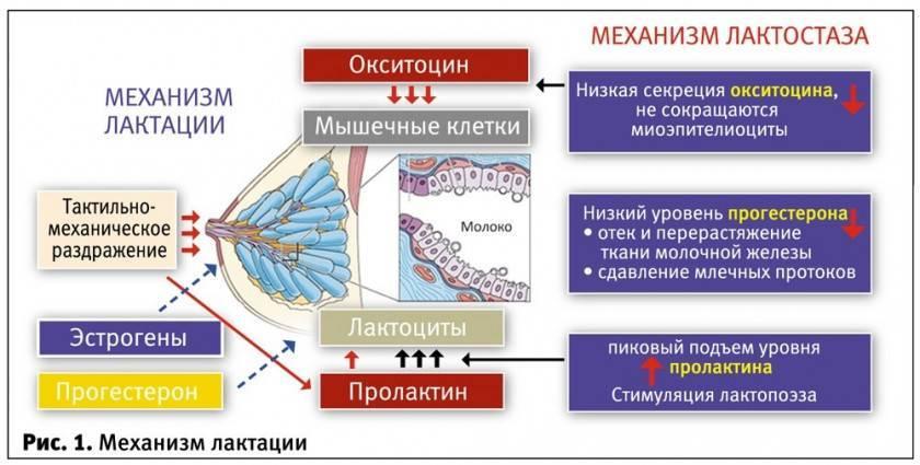 Симптомы и порядок лечения лактостаза у кормящей матери