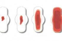 Почему не заканчиваются месячные, причины, что делать, как остановить менструацию