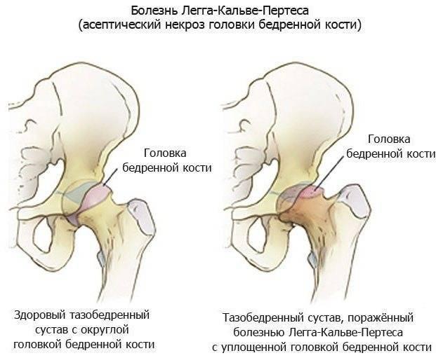 Чем опасен артрит тазобедренного сустава для ребенка?