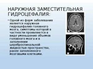 Гидроцефалия - водянка головного мозга у детей, новорожденных и грудничков (43 фото): симптомы и признаки, последствия гипертензионно-гидроцефального синдрома