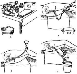 Как сделать клизму новорожденному в домашних условиях  |