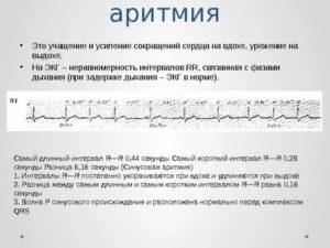 Синусовая аритмия у ребенка: причина патологии, разновидности и формы отклонения, диагностика и лечение
