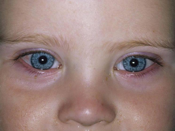 8 основных причин развития конъюнктивита у ребенка и способы его лечения
