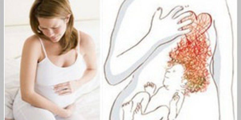 Как избавиться от изжоги при беременности: народные средства и диета при изжоге у беременных