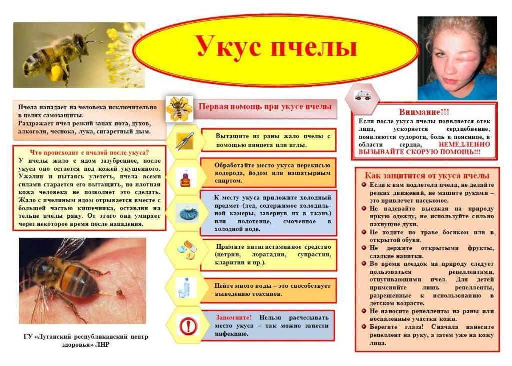 Что делать, если ребёнка ужалила пчела? Советы от детского аллерголога