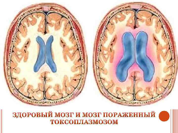Гидроцефалия головного мозга у детей до и после года: симптомы и лечение
