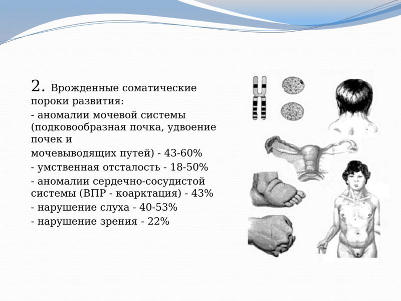 Врожденные пороки развития плода - статьи о беременности и родах