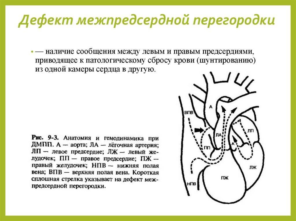 Дефект межпредсердной перегородки у детей — сердце
