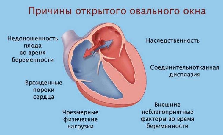 Если у новорождённого открытое овальное окно в сердце — разъясняет детский кардиолог