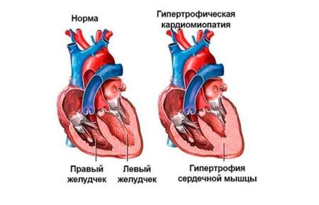 Функциональная кардиопатия у детей: распространенность заболевания