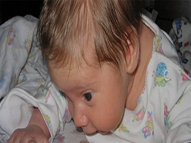 У ребенка потеет голова во время сна - почему и как ему помочь
