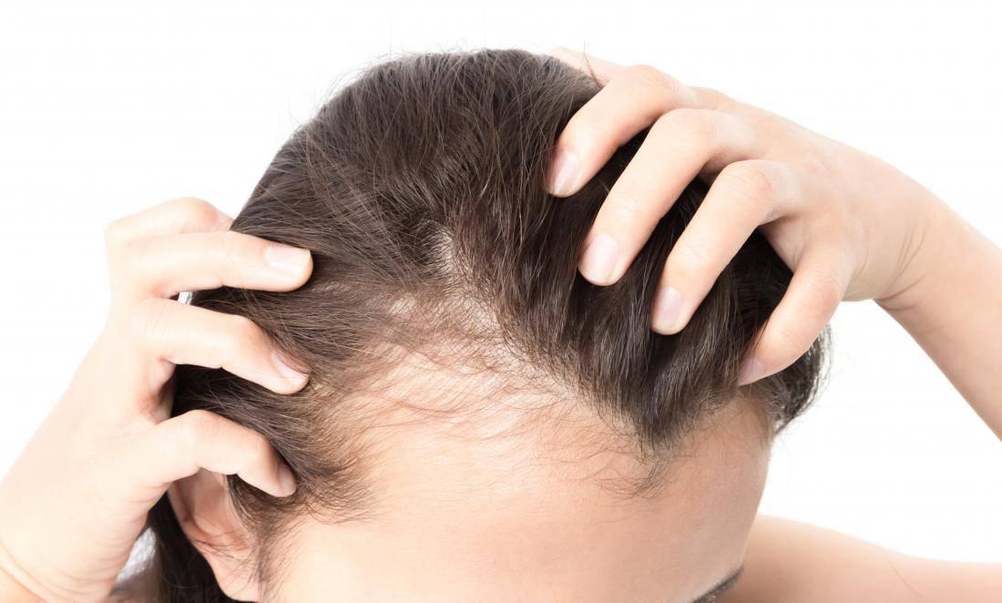 Выпадение волос у ребенка: возможные причины, виды лечения и средства, решающие проблему