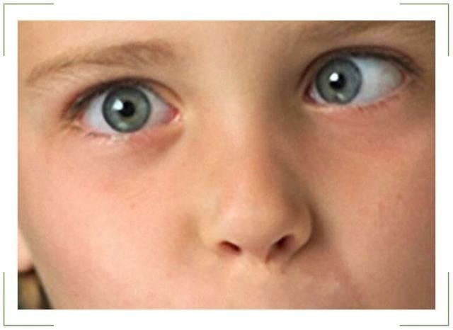 Что это такое - амблиопия у детей: причины и степени заболевания глаз