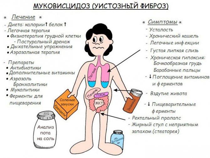 Муковисцидоз у детей: симптомы и признаки заболевания у ребенка от года до 3 лет и старше