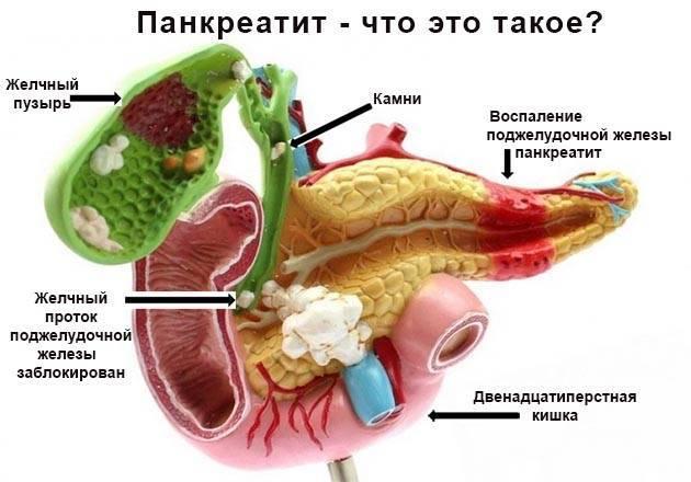 Панкреатит удетей: причины, признаки иособенности лечения