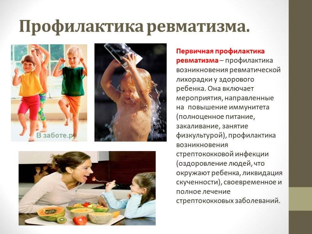 Ревматизм у детей - симптомы, лечение, клинические рекомендации, профилактика
