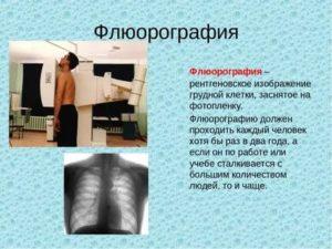 Рентген легких ребенку: назначение, подготовка, особенности обследования