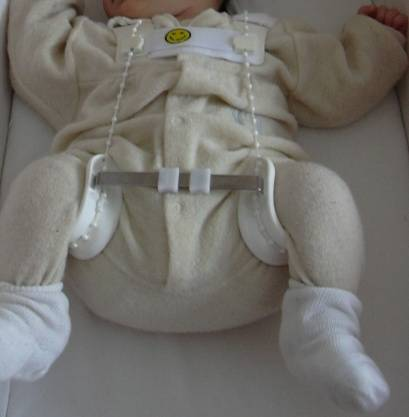 Дисплазия тазобедренных суставов у детей (23 фото): это это такое, симптомы и лечение дисплазии у малыша