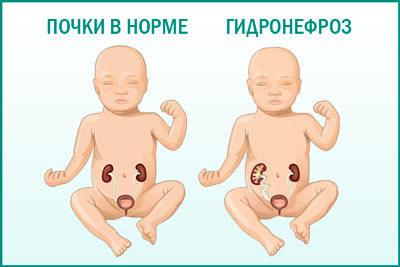 Односторонний и двусторонний гидронефроз плода при беременности, прогноз