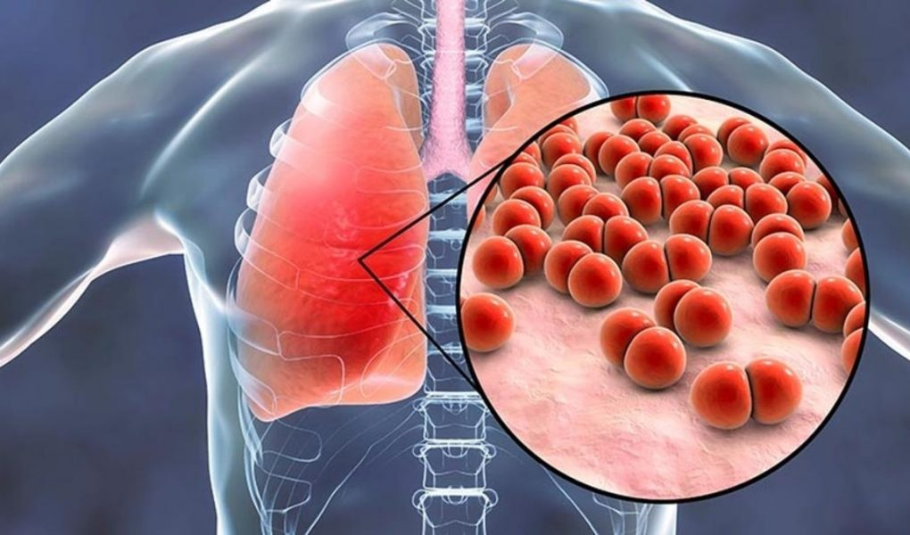 Пневмония (воспаление легких) у детей: симптомы, лечение, последствия
