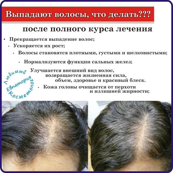 Комаровский - у ребенка выпадают волосы: что делать, у детей до года