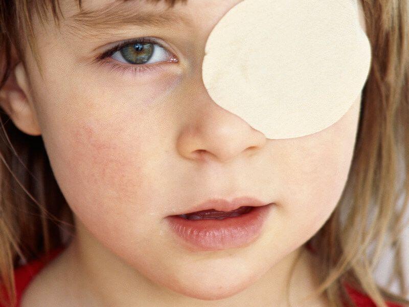 Амблиопия у детей - что это такое, причины и лечение