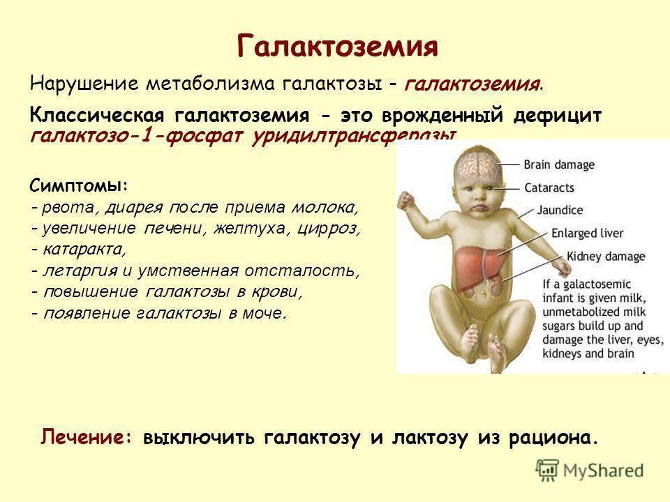 Целиакия – что это такое за заболевание? симптомы у детей, анализ на целиакию, клинические рекомендации