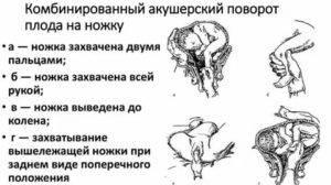 Наружный акушерский поворот | dr velemir, chirurgien gynécologue obstétricien à nice