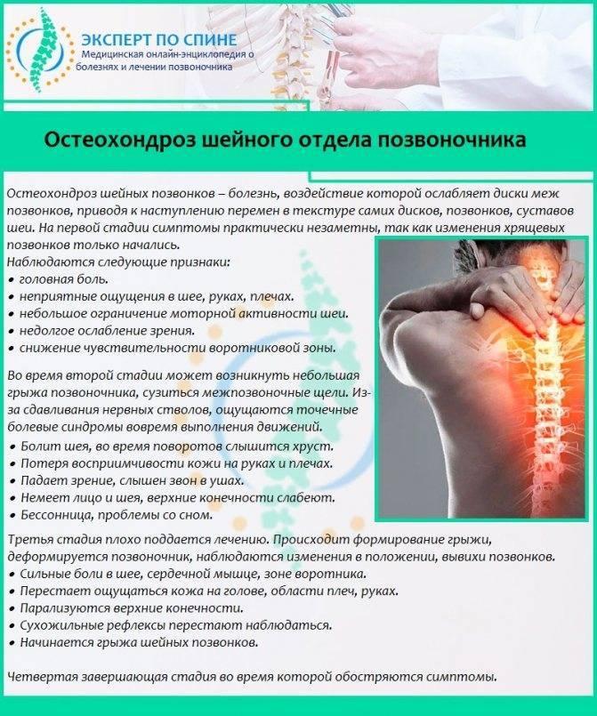 Как вылечить остеохондроз с корешковым синдромом: симптомы и схема лечения