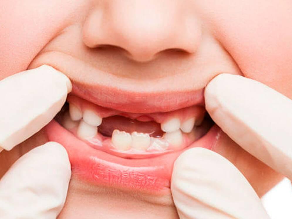 Кариес молочных зубов: причины возникновение, лечение, профилактика | новости