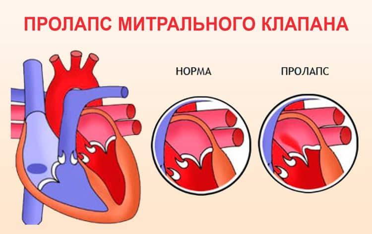 Чем опасен пролапс митрального клапана и что это такое? симптомы, причины, лечение