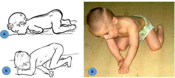Гипертонус мышц у новорожденных и младенцев до года: симптомы и лечение у грудничков