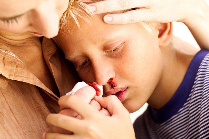 У ребенка внезапно пошла кровь из носа