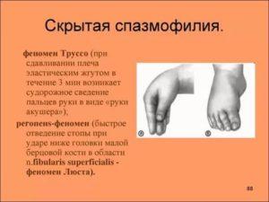 Причина спазмофилии у детей, ее симптомы и лечение. как лечить спазмофилию у детей