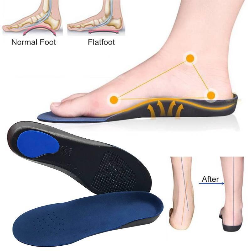 Ортопедические стельки при поперечном плоскостопии как выбрать